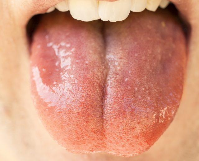 Geschmackszellen vor Infektionen schützen